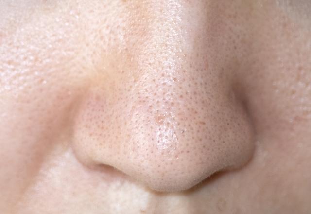 オロナイン パック 顔 全体 オロナインを毎日、顔全体に塗ったら肌は綺麗になりますかね?